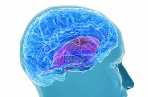 脑出血和脑梗有什么区别?