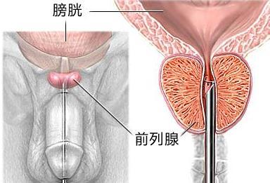 前列腺炎怎么治疗
