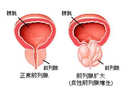 前列腺增生的原因