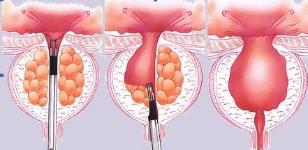 前列腺增生的症状