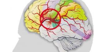 脑溢血后遗症如何恢复