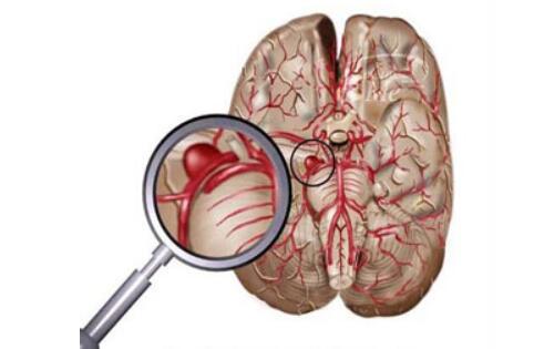 突发性脑溢血能治好吗