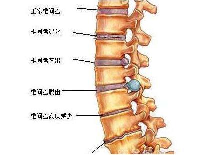 腰间盘突出的治疗方法