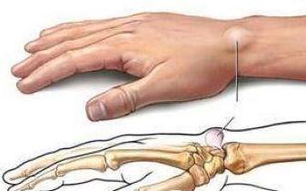腱鞘炎是怎么回事