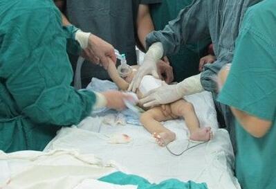 小儿疝气的手术方式有哪些