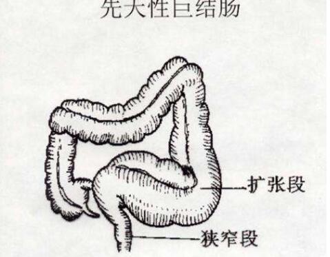 先天性巨结肠的症状有哪些