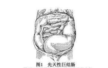 先天性巨结肠是什么