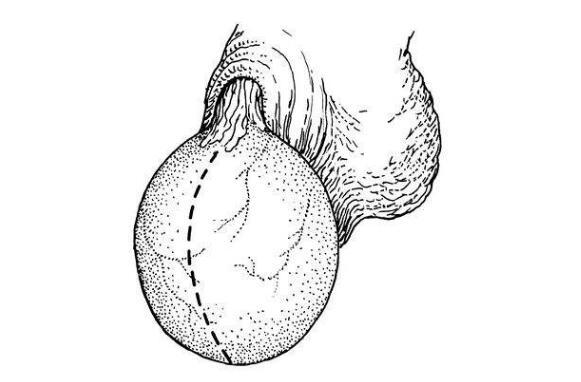 小儿鞘膜积液主要症状有哪些