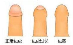 包皮过长是什么样的