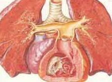 肺心病常见的症状有哪些