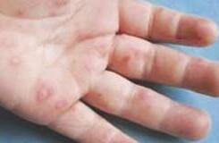 手足口病严重吗