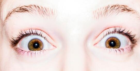 什么是青光眼